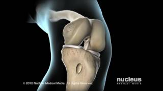 Anterior Cruciate Ligament (ACL) Repair with Gregory Duff, MD