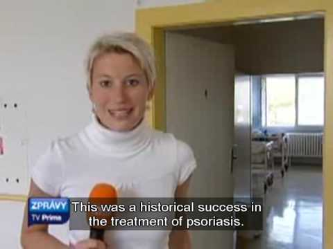 Prima - Zpravy 22 09 2009 - New Treatment for Psoriasis - Dr. Michaels - Dr. Michael Tirant.