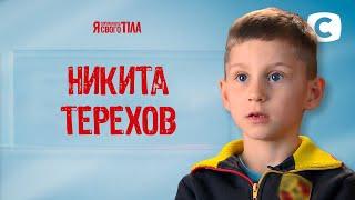 Никите Терехову больно ходить из-за странного искривления ноги – Я стесняюсь своего тела 2020