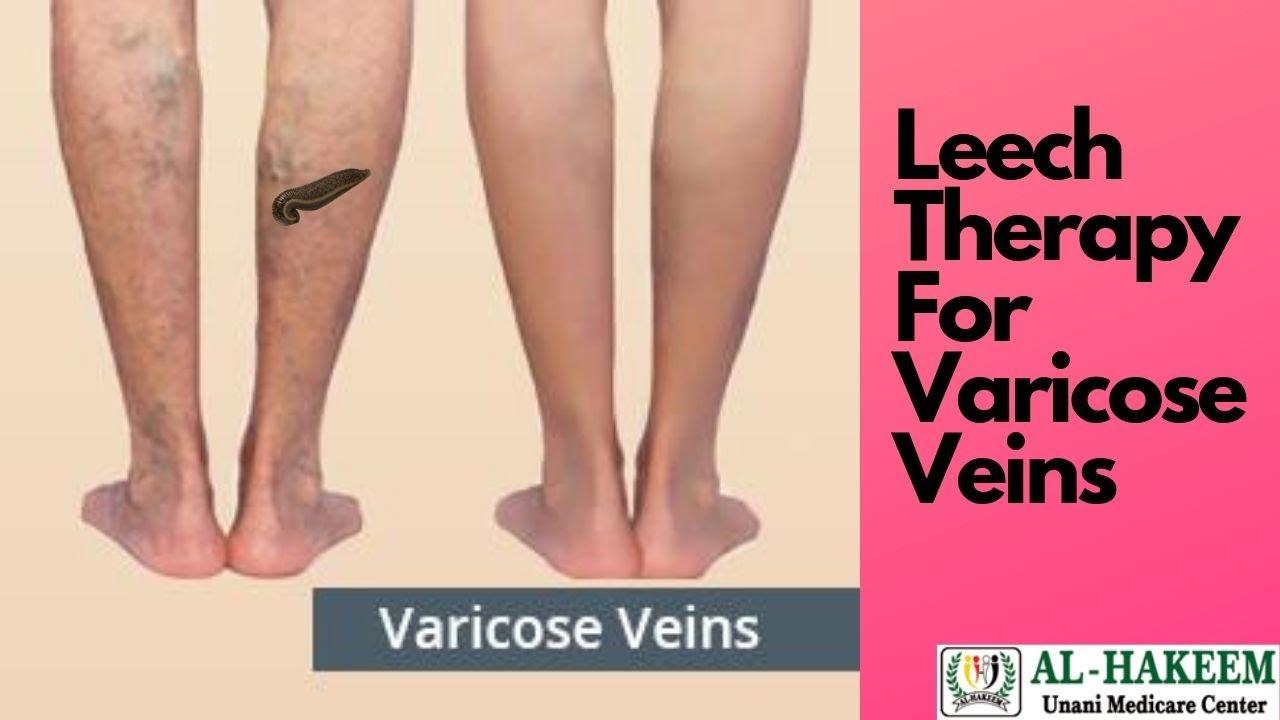 prevenirea varicoasă picioare de câine în varicoză