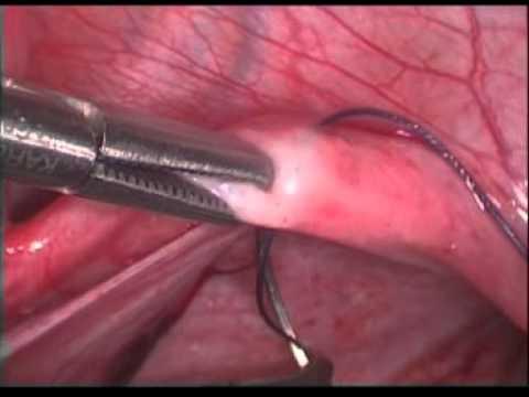 laparoscopic creation of neovagina 6 by (dr meena naik)