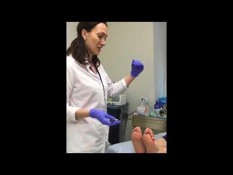 Как проверить поражены ли ноги диабетом
