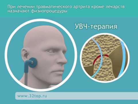 Лечение артрита височно-нижнечелюстного сустава - YouTube