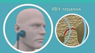 Лечение артрита височно-нижнечелюстного сустава(, 2015-11-03T11:29:48.000Z)