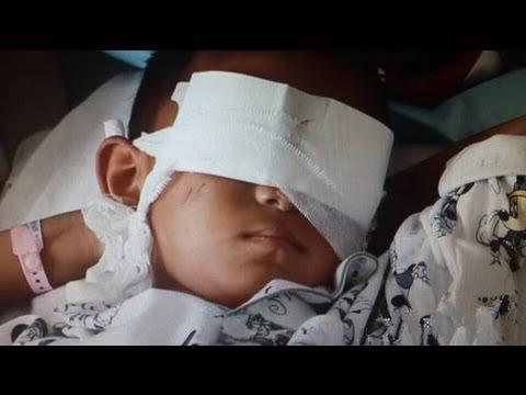 20140228 心理访谈 十二岁男孩失明之殇