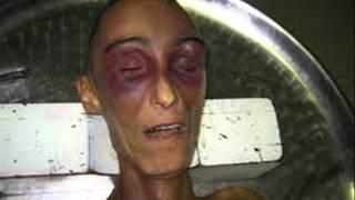 Repeat youtube video MORIRE DI CARCERE: AGGIORNAMENTO AL 31 LUGLIO 2012