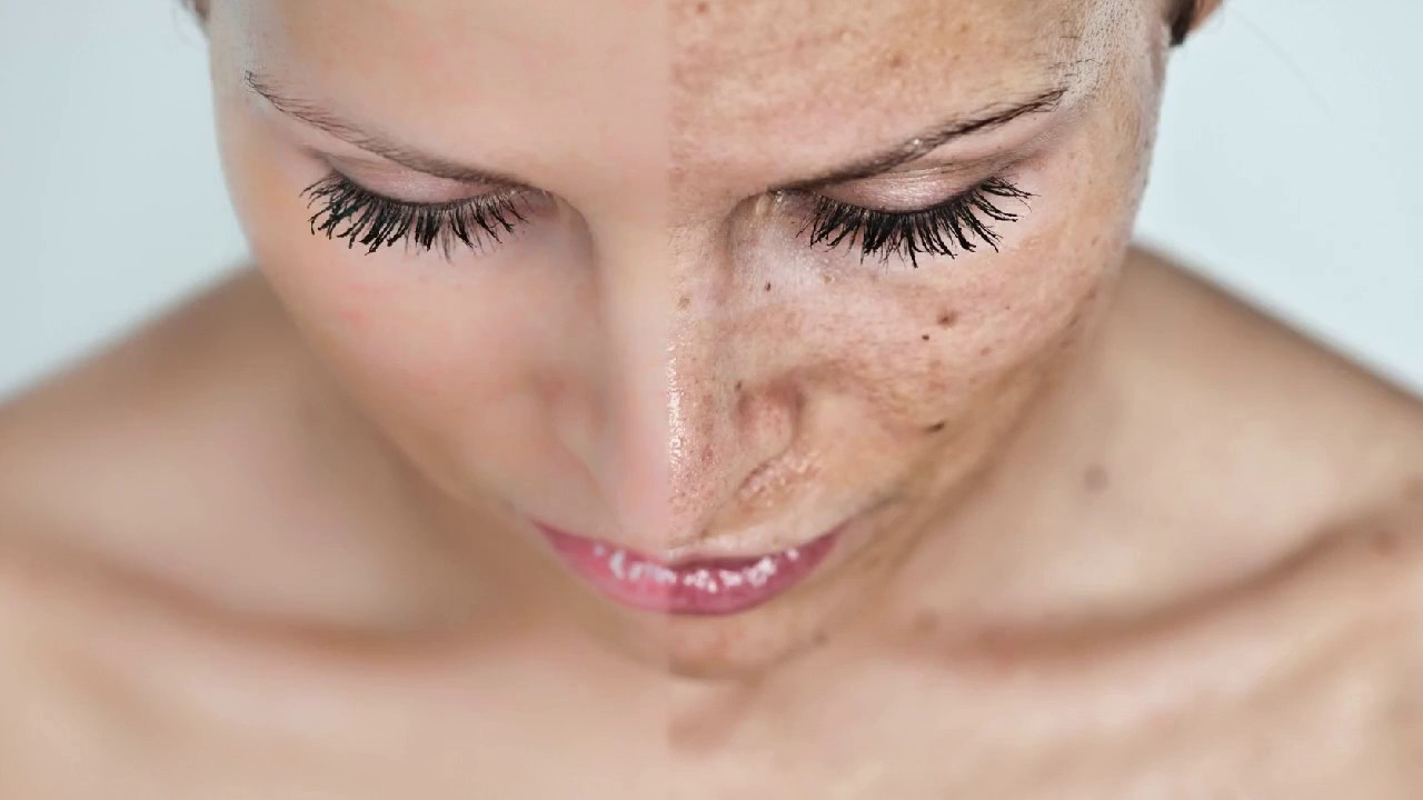 Fraxel Resurfacing Laser | Atlanta | Skin Cancer Specialists