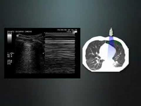 Respiratory Medicine and Thoracic Surgery
