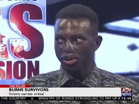 Burns Survivors - The Pulse on JoyNews (16-10-17)