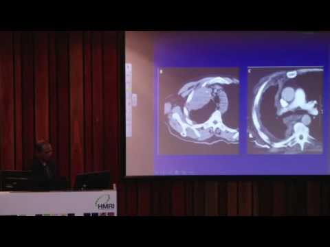 Mesothelioma & Lung Cancer