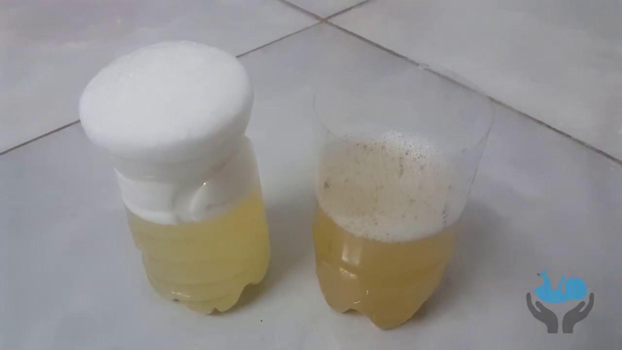 Soap Water Homemade Pregnancy Test | Homemade Pregnancy Test With Soap | Pregnancy Test AT Home