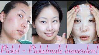 5 Tipps gegen Pickel + Pickelmale - so wirst du sie schnell los!