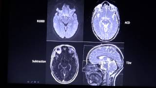 Basic MRI sequences part 2 by Radiologie TV