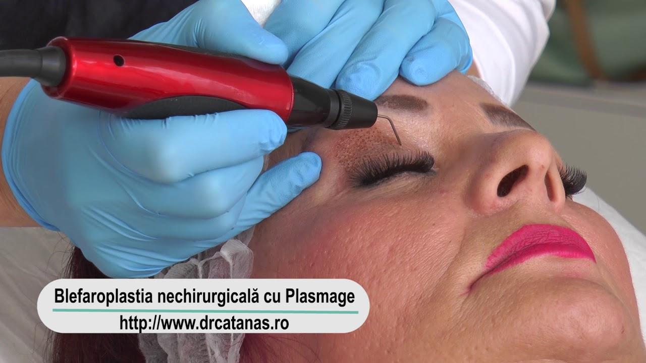 video laser cu tratament cu varicoză varicoză și citrice