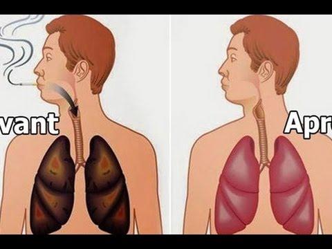 فيديو 4 مأكولات مدهشة.. لتنظيف رئتيك من أثار التدخين بسهولة !