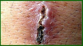 Formigamento no açúcar sangue baixo com de nível dedos