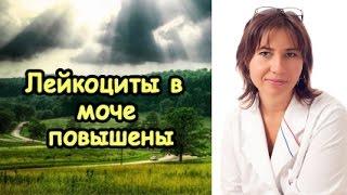 видео Расшифровка анализа секрета простаты, норма лейкоцытов в соке