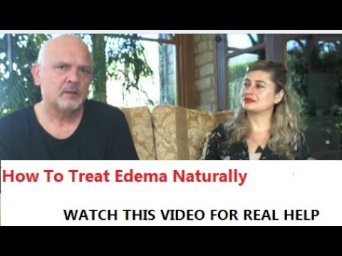 How To Treat Edema At Home With Homeopathic Treatment