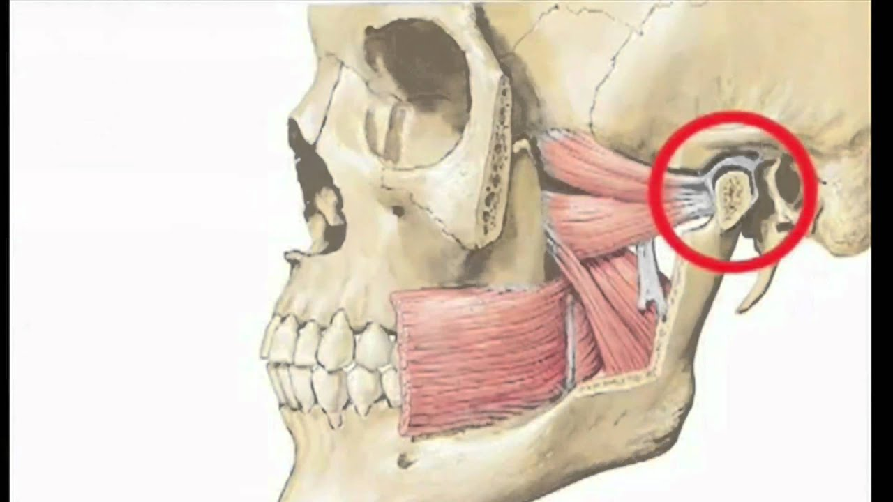 TMJ Disorder and Night Guards - YouTube