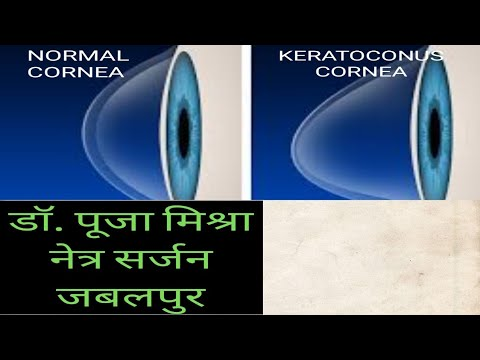 KERATOCONUS ( Abnormal shape of Cornea ); an eye disorder by Dr. Pooja Mishra ; हिंदी मे।