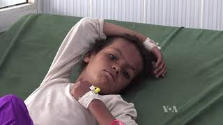 UN Official Warns of Imminent Great Hunger in Yemen
