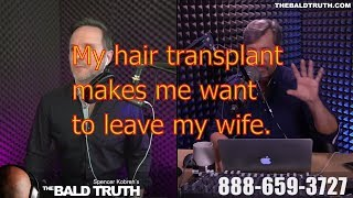 The Bald Truth-Tuesday June 26th, 2018-SMP, Dwayne Johnson, Hair Transplant, FUT, FUE, PRP Hair