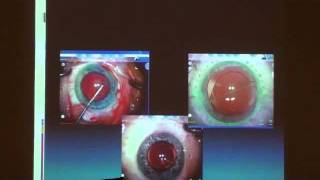 Astigmatic Correction During Phaco
