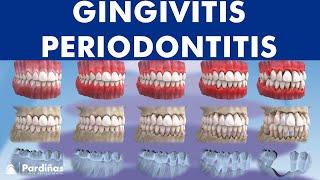 Hallo DUIon! Sudah tahu soal penyakit gusi? Gingivitis harus segera diatasi. Jika dibiarkan, penyaki.