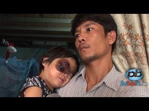 Nhà nghèo không tiền, bé Thúy 4 tuổi, chịu cảnh ung thư máu, mù một mắt