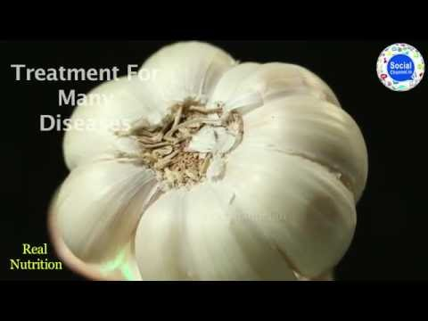 Benefits of Garlic | lasun/lehsun ke Fayde | Home remedies by Garlic | Tasty Spices | Food Doctor