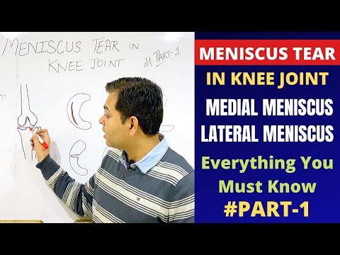 Meniscus Tear Recovery, Knee Joint Meniscus injury, Medial & Lateral MeniscusMENISCAL TEAR (Hindi)