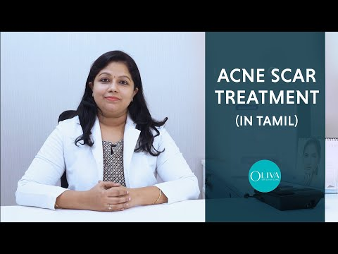 Best Treatment For Acne Scars And Pimple Marks (In Tamil) - முகபரு வடு விடுபட