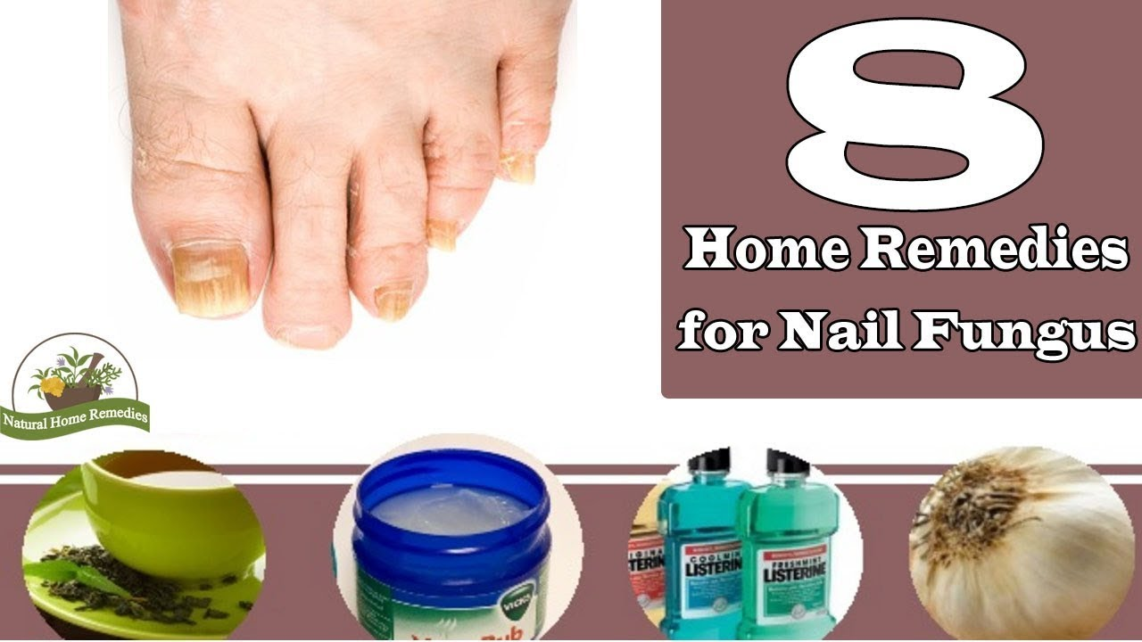 Nail Fungus ! 8 Home Remedies For Nail Fungus - YouTube