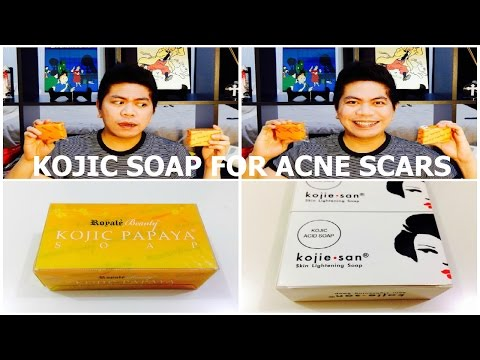 hqdefault - Soap That Can Remove Acne Scars