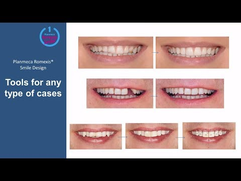 Planmeca Romexis® Smile Design Webinar – how to design realistic smiles