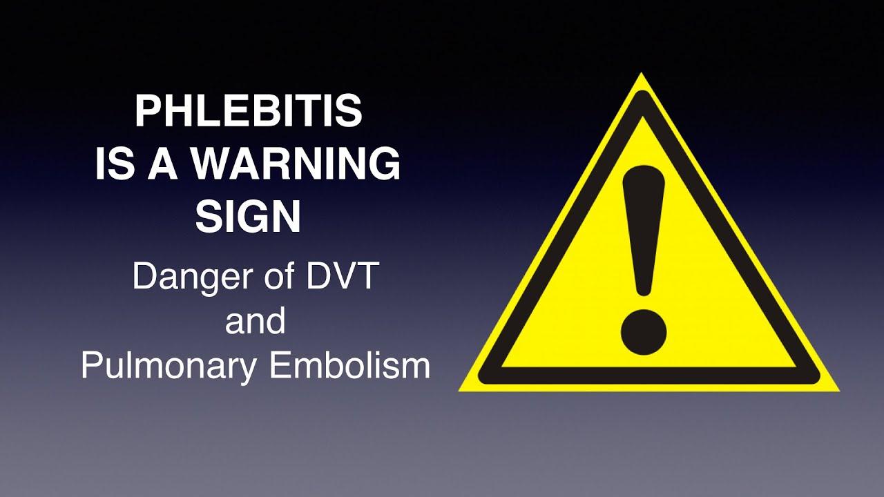 visszér és thrombophlebitis kezelésére