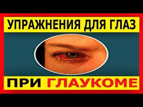 Глаукома - Симптомы и лечение народными средствами в