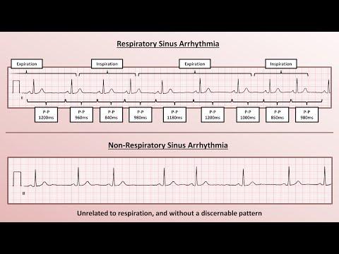 Advanced EKGs - Sinus Node Dysfunction