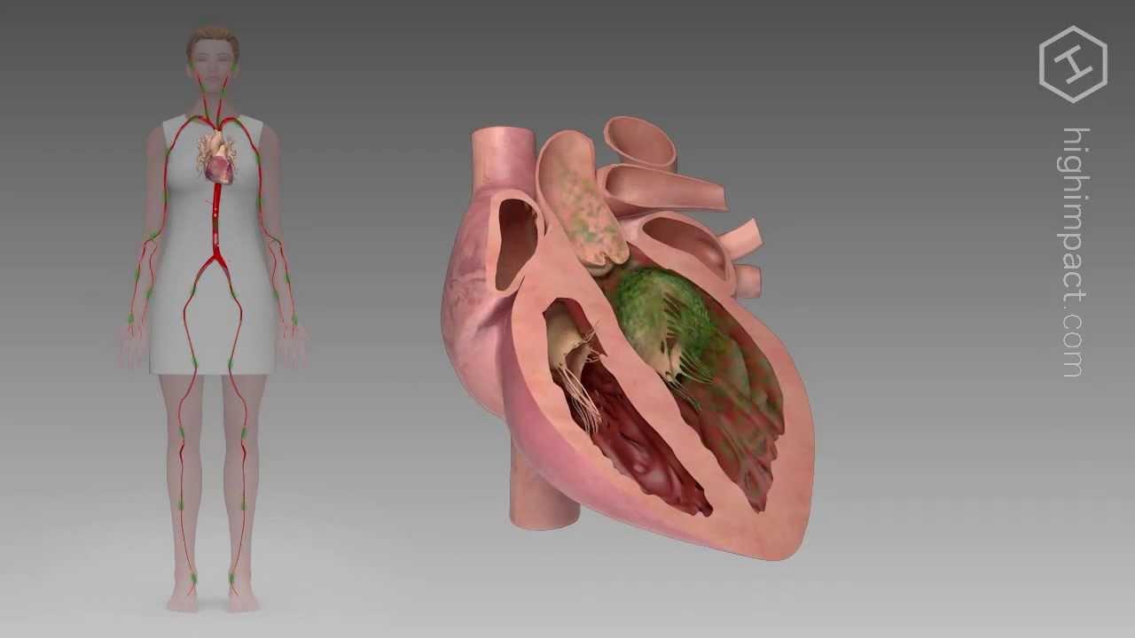 sintomi di endocardite batterica