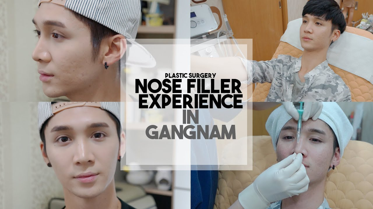 NOSE FILLER EXPERIENCE IN KOREA + FOOTAGE! - Edward Avila