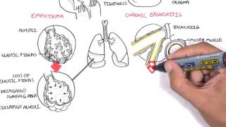 Chronic Obstructive Pulmonary Disease Overview (types, pathology, treatment)
