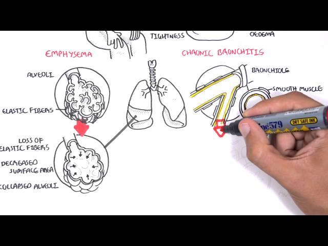 Chronic Obstructive Pulmonary Disease Overview (types, pathology, treatment)