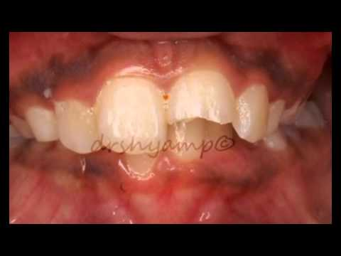 Composite restoration of fractured anterior tooth - YouTube