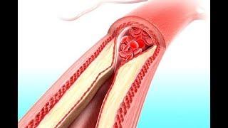 ★ Эти 5 продуктов, очищают сосуды, снижают плохой холестерин и обеспечивают нормальную работу сердца