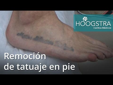 Remoción de tatuaje en pie (16170)