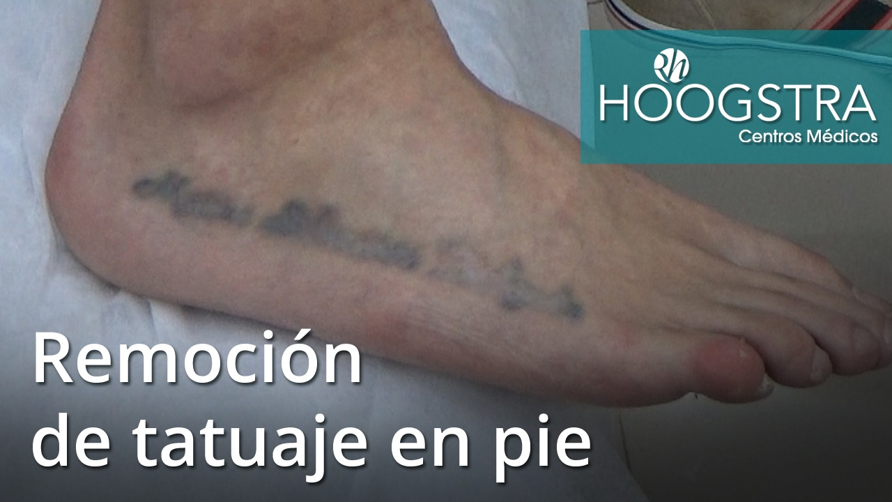 Remoción De Tatuaje En Pie 16170 Youtube