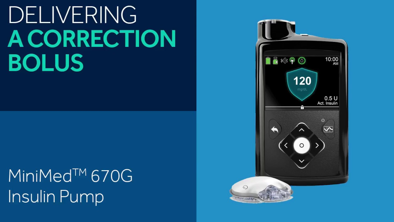 How To Turn Off Medtronic 630g Diabetestalk Net