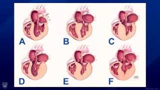 Live Webinar: Hypertrophic Cardiomyopathy and the Surgical Treatment Apical Myectomy