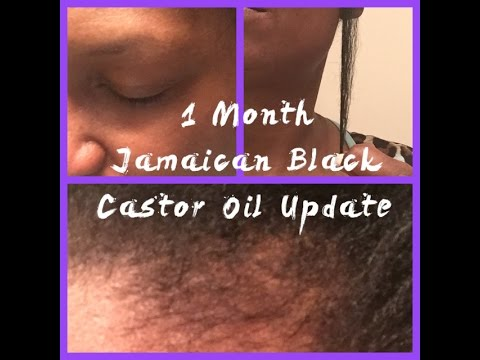 black castor oil hair growth before and after jamaican black castor oil 1 month update before after