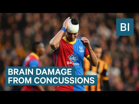 What happens to your brain during a concussion